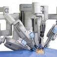 Per la prima volta all'ospedale Pascale di Napoliè stata effettuata un operazione al fegato utilizzando un robot di ultima generazione. si è trattato dell'asportazionedi un nodulo di un carcinoma di 2 centimetri e mezzo tra il secondo e il terzo […]